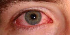 Palenie cannabis a zdrowie oczu, CannApteka.pl